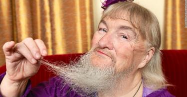 rüyada sakallı kadın