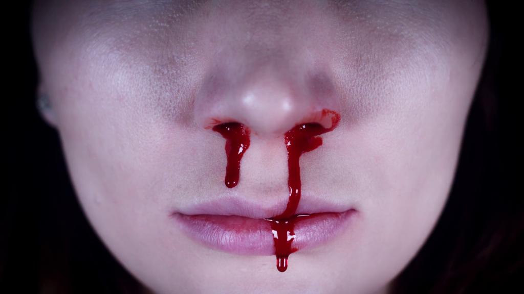 Rüya Yorumlama: Burun kan
