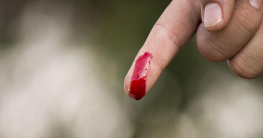 Rüyada Yeşil Kan Görmek ve Kanın Yere Akması