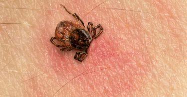 Rüyada Vücuttan Böcek Çıkması