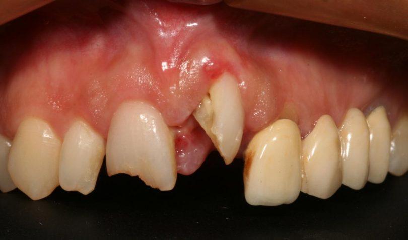 Rüyada Dişin Kırılması ve Kanaması