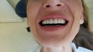 Rüyada Hastanede Ön Diş Kırılması