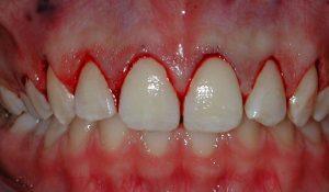 Rüyada Ön Diş Kırılması Düşmesi