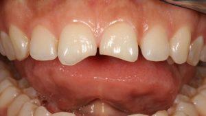 Rüyada Ön Diş Çatlaması Kırılması