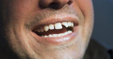 Rüyada Ön Diş Kırılması