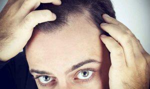 Rüyada Saç Kırılması Dökülmesi Görmek