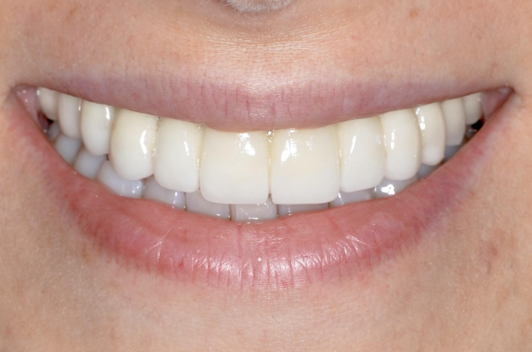 Rüyada dişlerin dökülmesi ve kanaması ne demektir ( Diyanet)