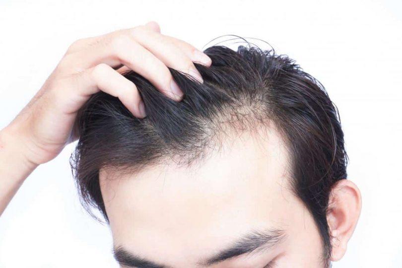 Rüyada Saç Diplerinin Beyazlaması