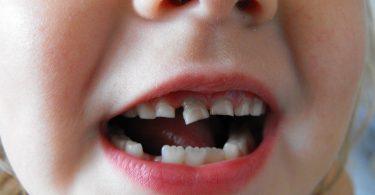Rüyada Dişlerinin Düştüğünü Görmek